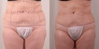 exilis fat reduction abdomen before and after