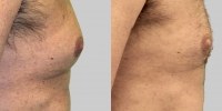 exilis gynecomastia before and after