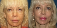 facelift before and afer