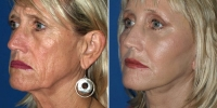 Facelift san diego before and after