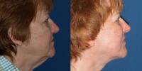 facelift-before-after-2-side