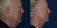 facelift-male-before-after-side