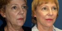 la-jolla-lift-before-and-after-oblique