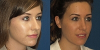 Open Rhinoplasty1 before after oblique