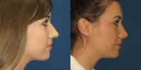 Open Rhinoplasty 1 before after side
