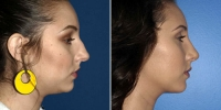 rhinoplasty-10-right