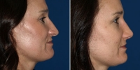 rhinoplasty-11-right