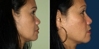 rhinoplasty-12-right