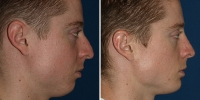 rhinoplasty-13-right