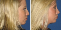rhinoplasty-14-right