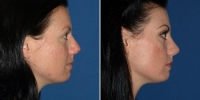 rhinoplasty-16-side