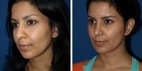 rhinoplasty-2-oblique