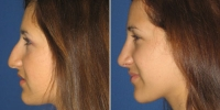 rhinoplasty-5-left