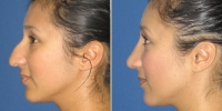 rhinoplasty-6-left