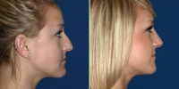 rhinoplasty-7-right