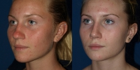 rhinoplasty-b-and-a-obliuqe
