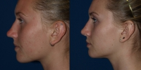 rhinoplasty-b-and-a-side