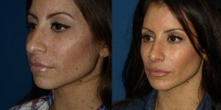 rhinoplasty-before-and-after-oblique