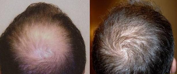 Hair Transplant San Diego Hair Restoration San Diego Best Hair Transplant