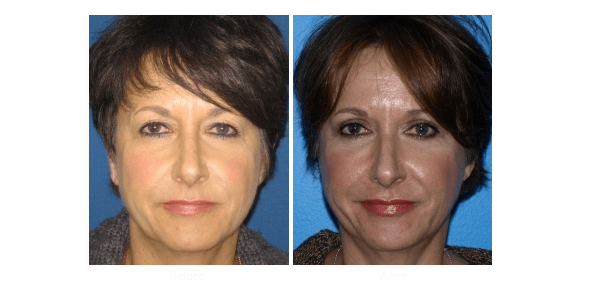 Blepharoplasty patient that opted for eyelid surgery