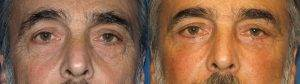 male fat transfer after rhinoplasty
