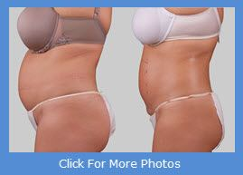 exilis fat before and after