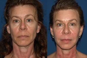 fat transfer female fill in hollow eyes