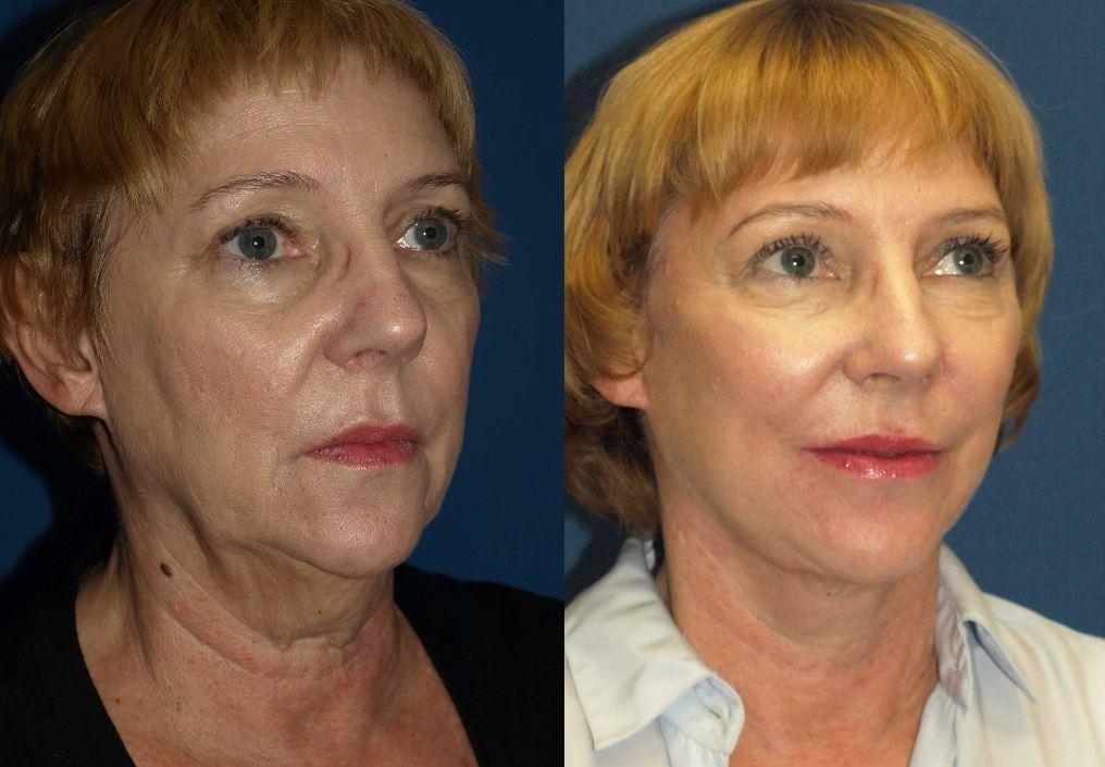 bruising grafting Facial fat