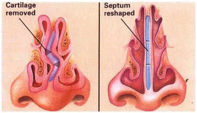 septoplasty image
