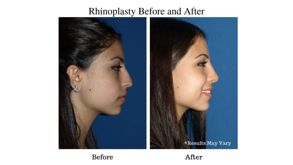 Rhinoplasty Patient Before and After photo