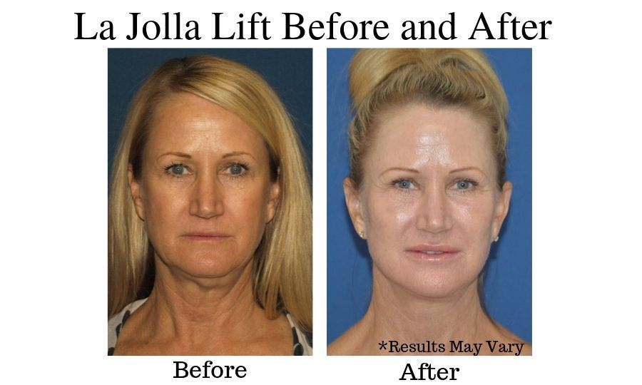 Before and after for Dr. David's La Jolla Lift patient in San Diego, California.